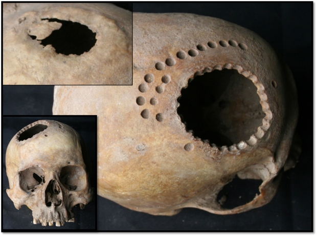 The top inset photograph is of the side of the skull where a previous trepanation had been successful enough to allow bone regrowth. So this fellow had it done, it worked for at least a time, then when he died he left his body to science (or science just took it) and became a drill depth tester. http://www.thehistoryblog.com/archives/28418