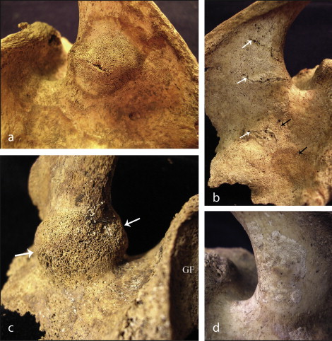 Image of pseudofractures occurring at the scapula spinous process. Image taken from Ives & Brickley (2014) p. 49.