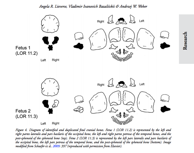 Diagram of identified and duplicated fetal cranial bones via 'Death by twins' article