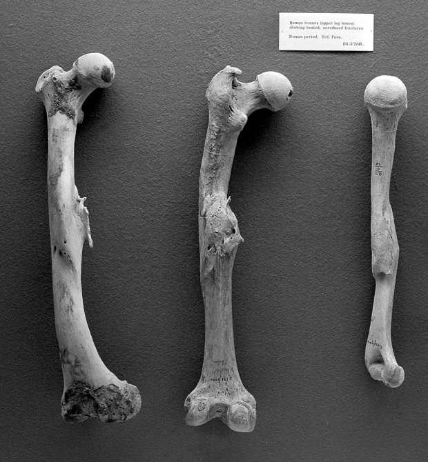 L0008764 Paleopathology: Human femurs from Roman period, Tell Fara
