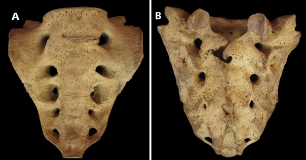 sacrum-with-completely-sacralized-l5-vertebra-a-anterior-b-posterior-showing-cleft